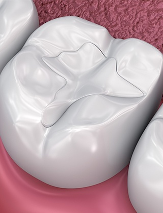 Animated tooth with metal-free filling