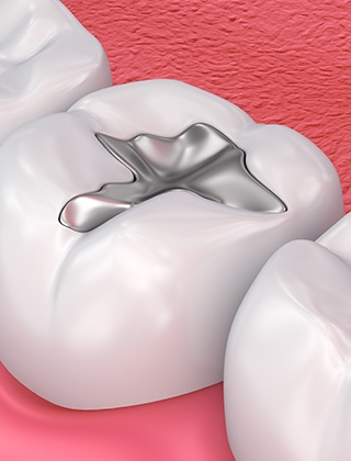 Animation of tooth with metal filling